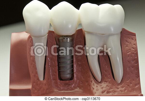 wzór, stomatologiczny, wpajać, capped - csp3113670
