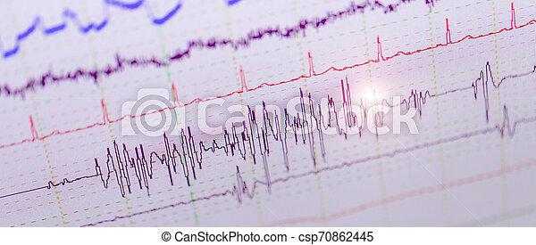 zdrowie, dane, analiza - csp70862445